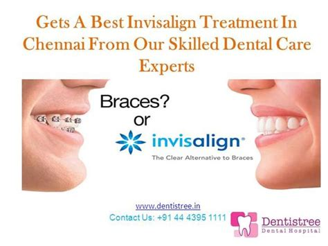 Gets A Best Invisalign Treatment In Chennai From Dentists Authorstream Invisalign Photo Template