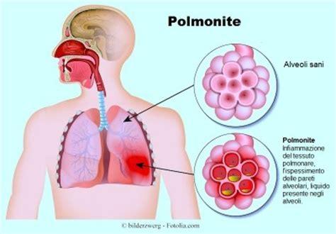 mal di testa da catarro sintomi della polmonite virale o batterica nei bambini e