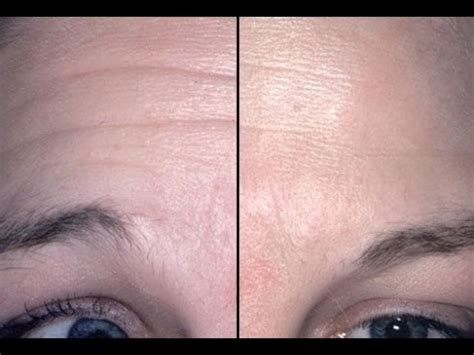 does a fringe hide forehead wrincles facial yoga exercises for removing deep forehead wrinkles