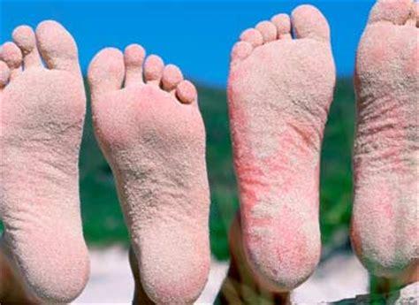 imagenes uñas con hongos el pie de atleta vida y sabor