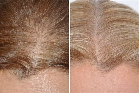 new hair replacement technology 2014 hair restoration hair transplant surgery for women in new