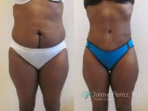 liposuction after c section tummy tuck to repair vertical c section scar