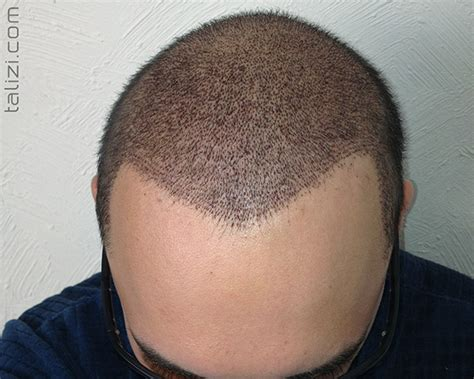 haircut after hairtramsplant progress of the record breaking hair transplant surgery