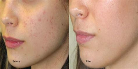 acne peels physician strength lasting looks