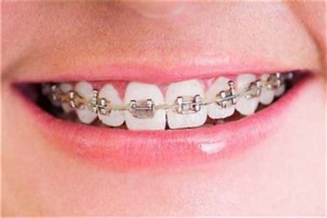 imagenes de negras sin dientes c 243 mo tener los brackets perfectos dentalvalles