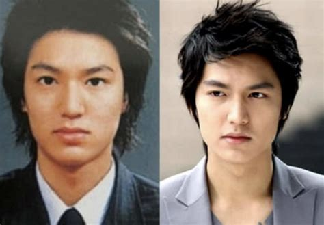lee seung gi oplas lee min ho plastic surgery before and after rhinoplasty