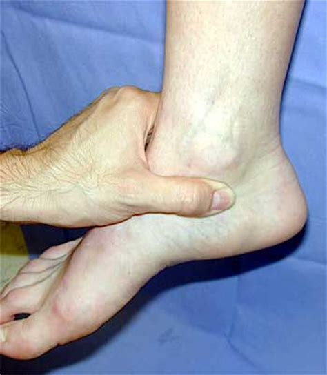 Interior Ankle Sprain by Inner Ankle Causes And Treatment