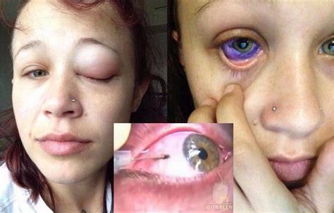 eyeball tattoo gone wrong she got her eyes tattooed now