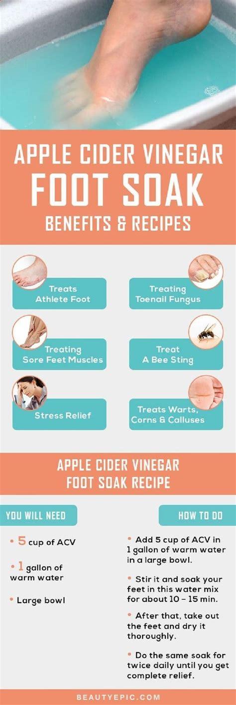 Apple Cider Vinegar Detox Headache by 60 Best Apple Cider Vinegar Images On Health