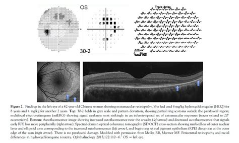 h pattern eye test recommendations on screening for chloroquine and