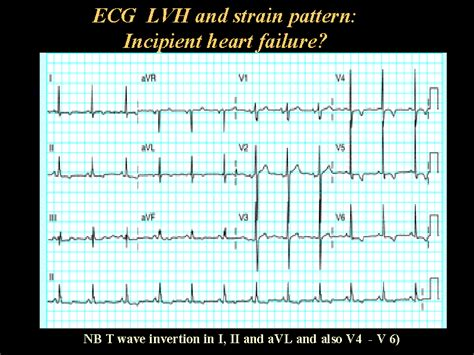 Strain Pattern Ecg Definition | ecg lvh and strain pattern