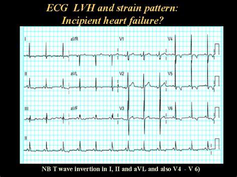 lvh pattern ecg lvh and strain pattern