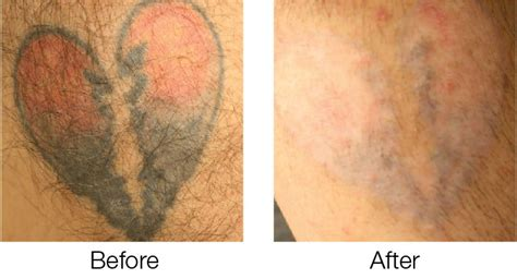 laser tattoo removal freckles korman plastic surgery picoway laser tattoo removal