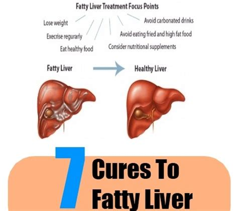 Do Liver Detoxes Cure Diabetes by 7 Cures For Fatty Liver How To Cure Fatty Liver