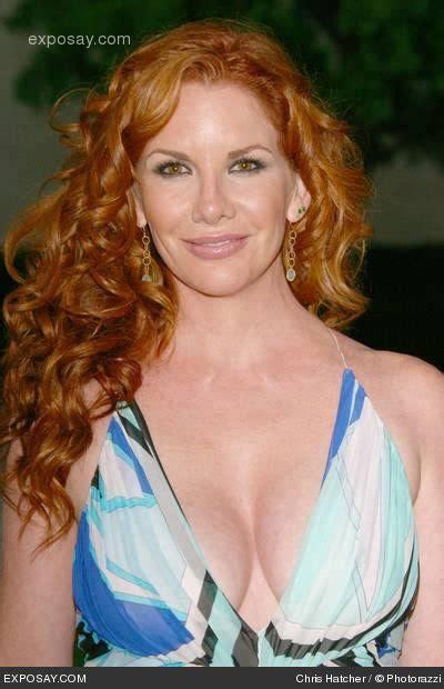 melissa gilbert stars plastic surgery celebrity