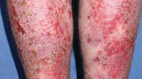 infected images infected eczema pictures treatment removal and more