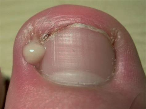 infected nail common foot problems foot centres of leeds