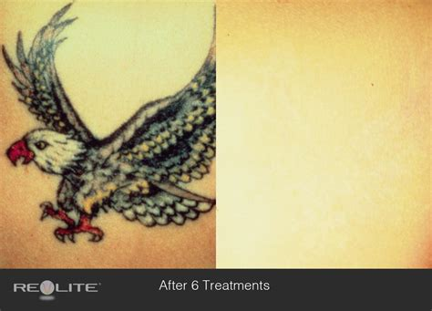 c creek tattoo removal removal cosmetic dermatology walnut creek ca 94598