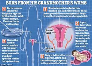 New Wombs For Transplant Anybody by The Baby Carried In A Womb Donated By His Grandmother