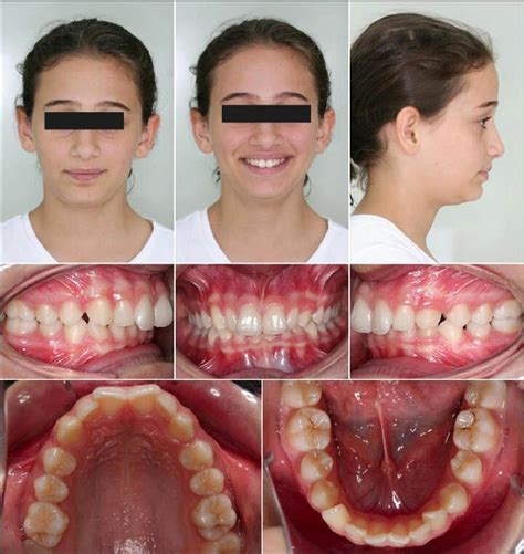 Extra And Intra Oral Photographs Of The Patient Prior To Orthodontic Download Scientific Invisalign Photo Template