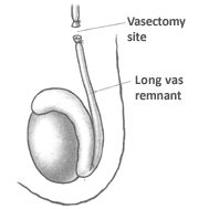 vasectomy reversal success rates pregnancy after vasectomy reversal