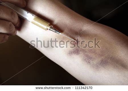 what color is herion addict stock photos images pictures
