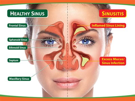 Sinus Care sinusitis treatment sinus infection where salt is the