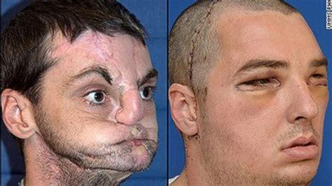 Richard Norris discrimination living with a disfigured face cnn com