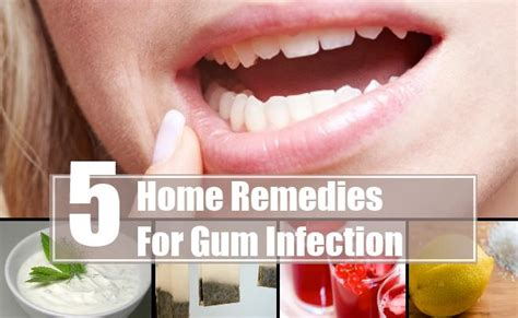 five amazing home remedies for gum infection