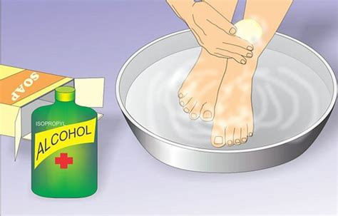 ingrown toenail treatment home remedies survival