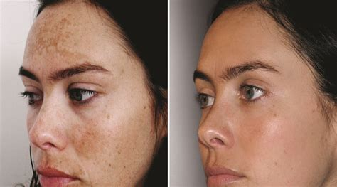 light chemical peel before and after chemical peel