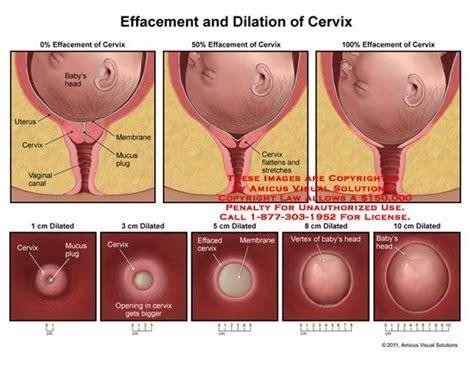 cervix diagram during pregnancy 1000 images about peds ob nursing on