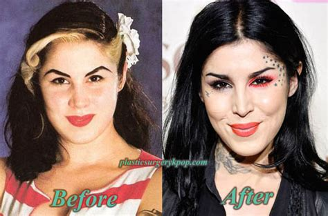 kat von d no tattoo d plastic surgery before and after pictures