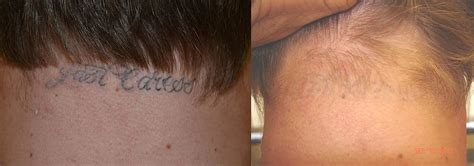 tattoo removal using saline solution painless removal los angeles beverly ca