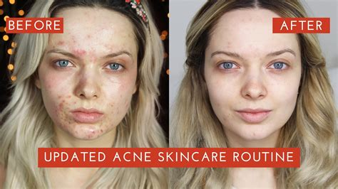 Paket White Glow Acne updated acne skincare routine how i cleared my acne mypaleskin