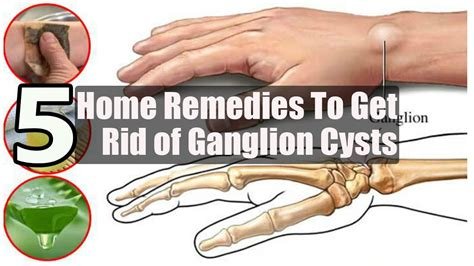 5 home remedies to get rid of ganglion cysts