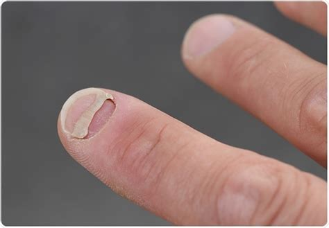 nail detached from nail bed onycholysis detachment of nail