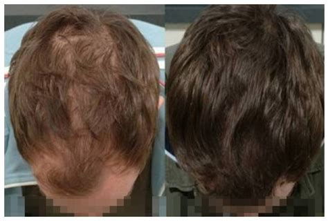 real minoxidel results propecia hairline results viagra buy online usa