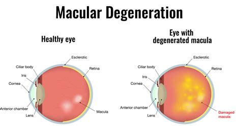 Test For Blindness Eating Grapes Can Help To Prevent Macular Degeneration