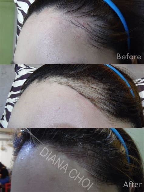 tattoo hair line semipermanent hairline it s the newest style of