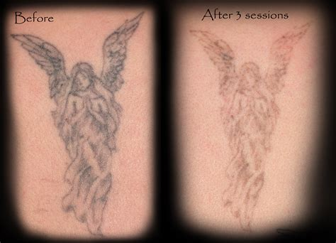pain of laser tattoo removal laser removal gallery 18 to studio