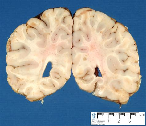 frontal section of brain brain frontal section 2 humpath com human pathology