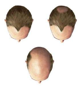 female pattern hair loss dht your blog excellenhealthl395