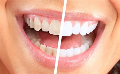 teeth whitening kit products