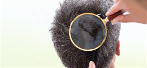 dermatite seborroica testa dermatite seborroica cuoio capelluto ecco cosa fare