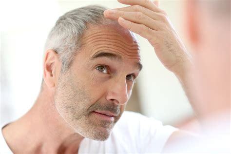 prevent and prolong balding mens health when things get hairy probiotics and hair loss