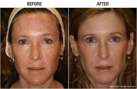 E One Ipl Session Before And After On Man And Woman Face | before and after photos forever young bbl ashburn va