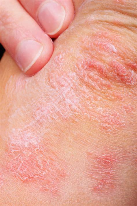 type of disease skin conditions types of skin diseases types of