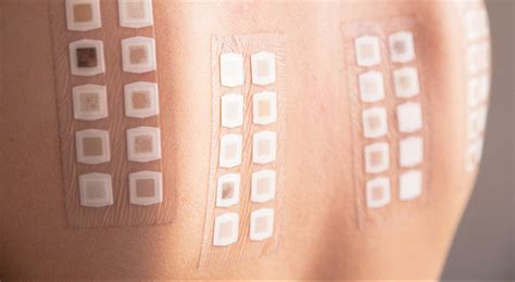 pach test patch testing cahaba dermatology