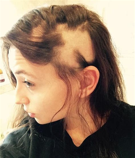 grande hair falling out alopecia sufferer embraces going bald after her hair fell